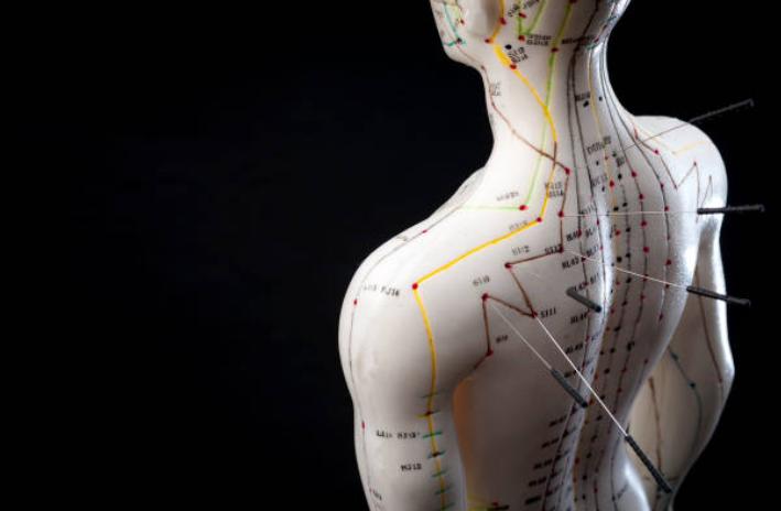 Akupunktur Tedavisi Ağrılı Bir İşlem mi