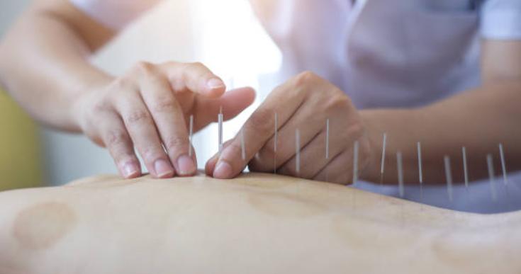 Akupunktur'un etkili olduğu hastalıklar